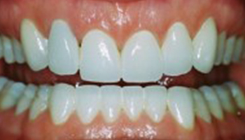 Justin Tebbenkamp DDS - Blacksburg Dentist