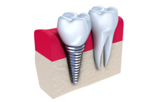 Justin Tebbenkamp DDS - Blacksburg Dentist -Dental Implant