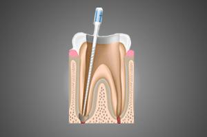 Justin Tebbenkamp DDS - Blacksburg Dentist - root-canal