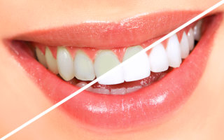 Justin Tebbenkamp DDS - Blacksburg Dentist -Teeth Whitening