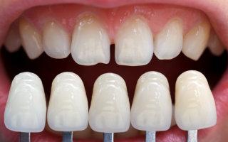 Justin Tebbenkamp DDS - Blacksburg Dentist -Veneers