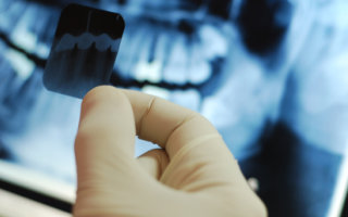 Justin Tebbenkamp DDS - Blacksburg Dentist- Blacksburg-x-ray